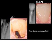 Апикальный периодонтит 32 зуба