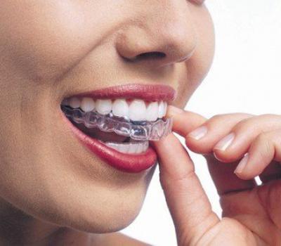 Установка элайнеров в стоматологии Дентклаб