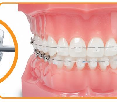 Установка брекетов damon clear в стоматологии Дентклаб