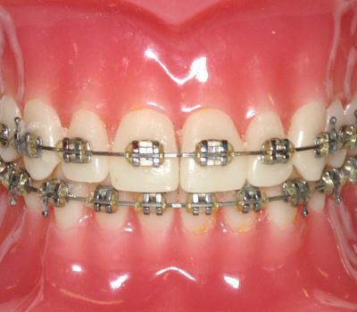 установка металлических брекетов в стоматологии Дентклаб